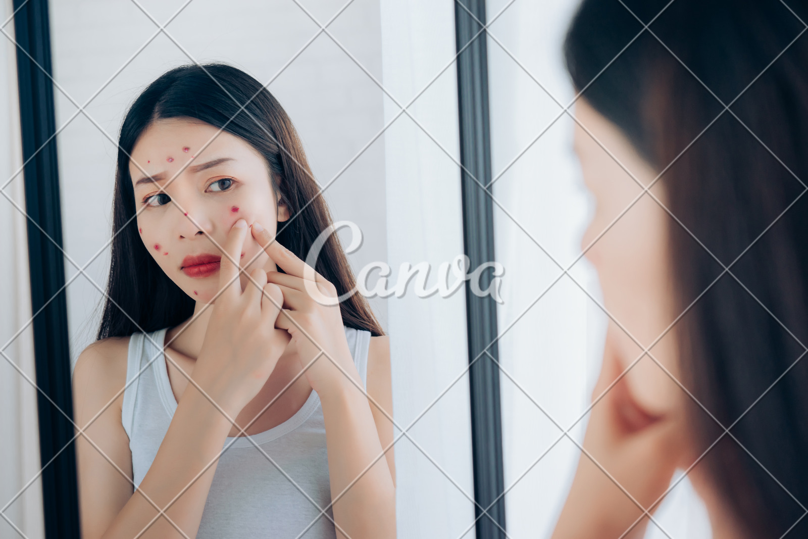 How to remove acne scar
