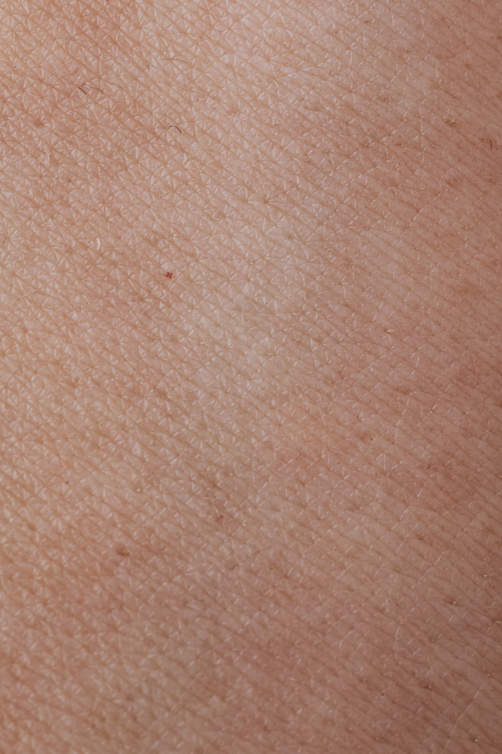 Top layer of the skin (Epidermis)